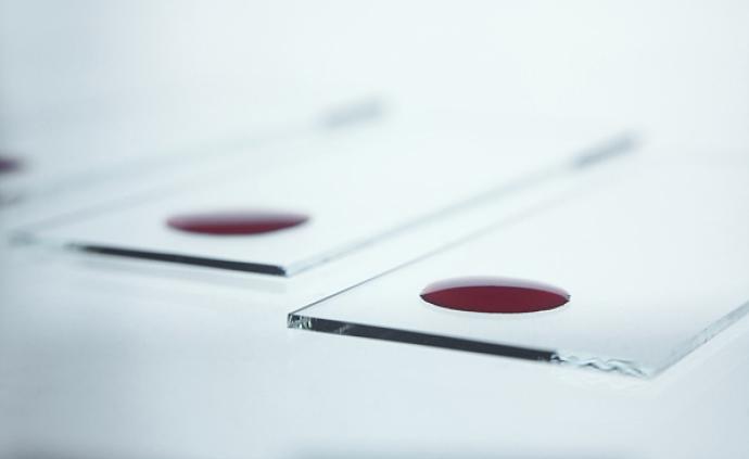 為推銷山藥粉在店內擅自采血、虛構檢測結果:浙江一商戶被罰