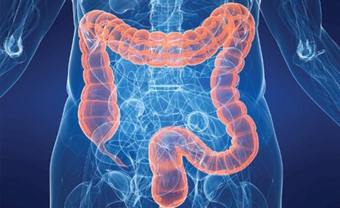 研究人員發現可預防結直腸癌的化合物,海螺腺體分泌物中分離