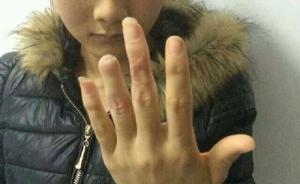 """甘肃警方调查""""女子称遭两刑警酒后调戏并割断手指""""事件"""