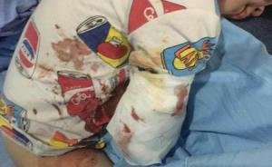 2岁男孩四川雅安景区被白虎咬掉右手,当时有3名成人陪同