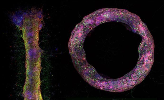 科学家用新方法构建体外3D神经组织模型,按需控制大小形状