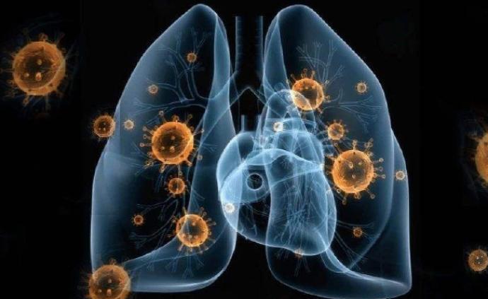 澳門出現首例新型冠狀病毒感染的確診案例
