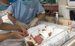 江西产妇在沪生下四胞胎女儿,系自然妊娠此前已有两个孩子