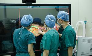 上海医生成功分离肝脏连体女婴:切断血管,再造脐部