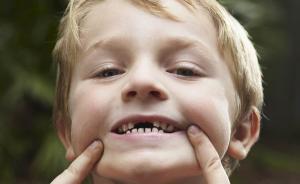 4岁就换牙,是不是有点早?