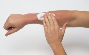 烈日炎炎皮肤易受伤,中医如何防治汗斑痱子和晒伤