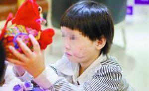 广东5岁女童店门口玩耍时左脸被恶犬咬烂毁容,缝合40多针