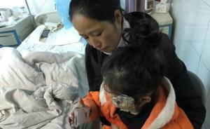 三星手机爆炸致贵州女童浅二度烧伤,家属索赔178万