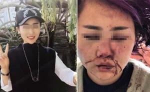 女子在丽江被打毁容案明开审,受害人称不出庭:心理创伤太重