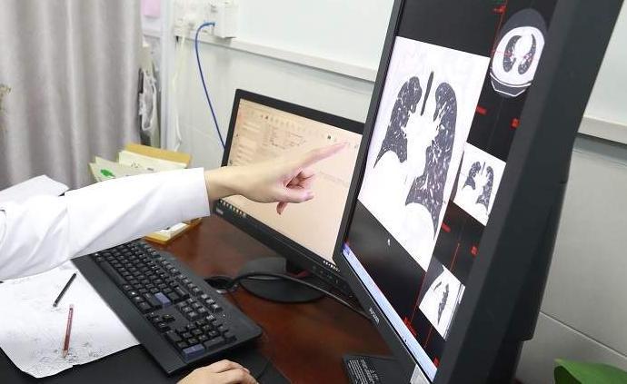 湖北襄陽:每日新增疑似病例檢測結果呈陽性的大概只占5%
