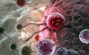 这个新疗法被称第四种抗癌手段:定价47万美元没疗效不收费