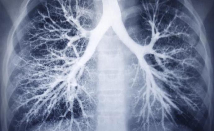 结核病防治新突围:互联网医院、影像学等逐步应用并发挥作用